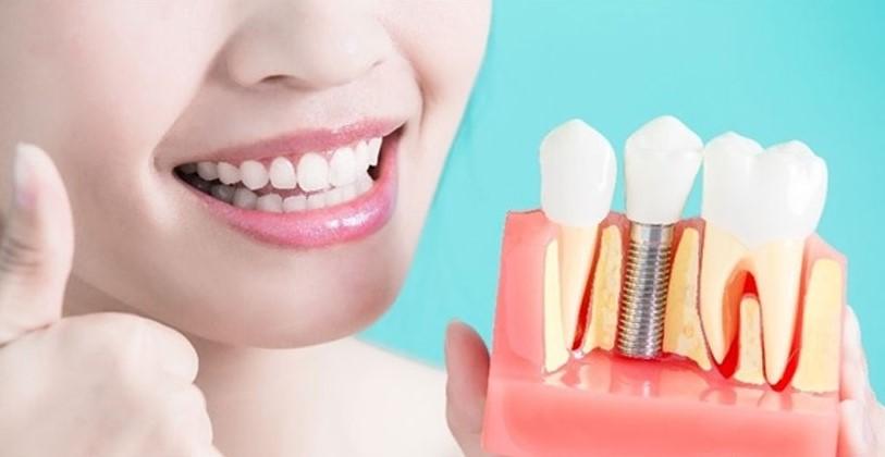 Dental Treatment & Implant